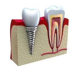 Dental Implant Diagram | Charlestown NSW