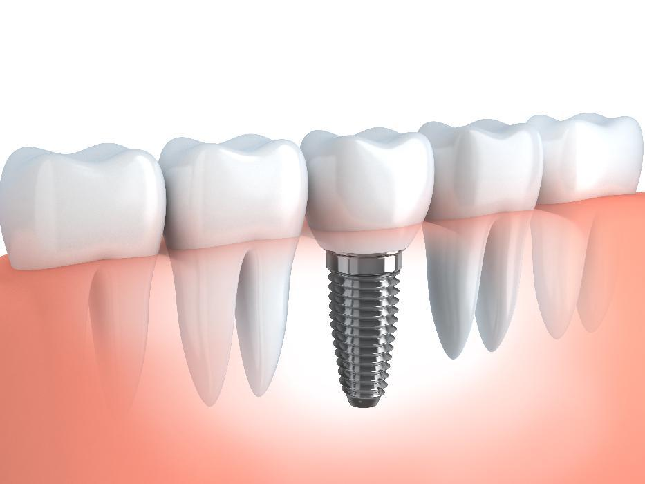 Dental Implants in Charlestown NSW